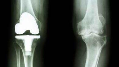 Schmerzensgeld und Schadensersatz bei Unfall